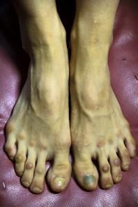 pedicure voeten